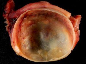 Benign Ovarian Cyst