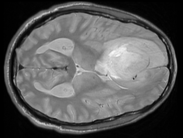 Brain cancer in the frontal right lobe as seen on MRI