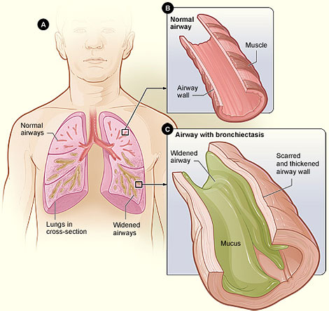 Bronchiectasis NHLBI