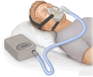 Continuous positive airway pressure cpap