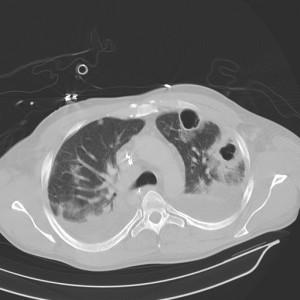 CT pneumonia with abscesses