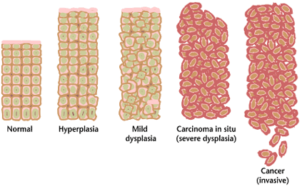 Cancer_progression_from_NIH