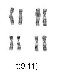 Chromosomal translocation (9;11), associated with AML