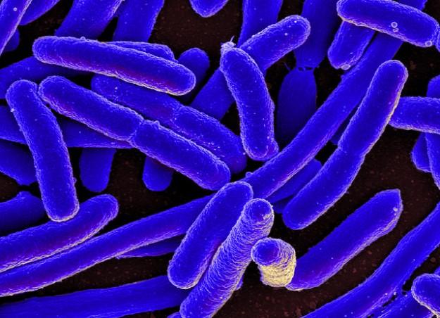 Colorized scanning electron micrograph of Escherichia coli