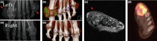 Comparing the usefulness of four imaging techniques in the same gouty arthritis patient