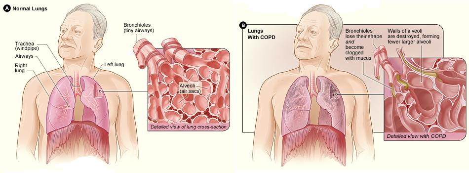 Emphysema Causes And Treatment Online Medical Library