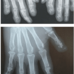 X-Ray of Cysts in den Phalanges