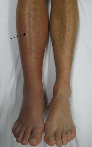 Deep vein thrombosis of the right leg