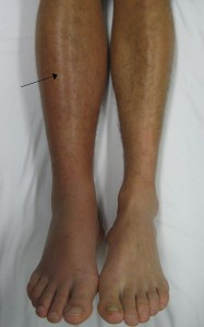 Deep vein thrombosis of the right leg