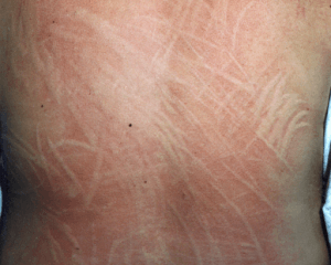 Dermographic urticaria resulting from pressure through clothing