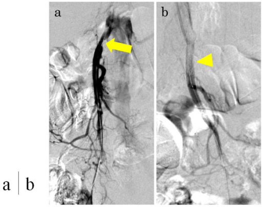 Digital subtraction angiography during percutaneous transluminal angioplasty and stenting