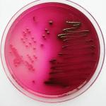 E. coli