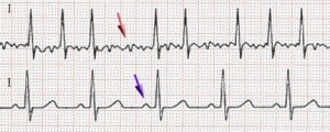 ECG of atrial fibrillation (top) and normal sinus rhythm (bottom).