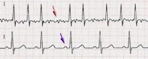 ECG of atrial fibrillation (top) and normal sinus rhythm (bottom).