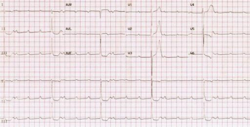 ECG-rheumatic-fever