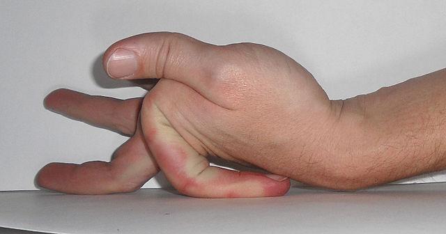 EDS-Finger