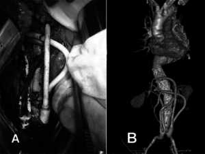 Endovascular aneurysm repair