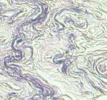 Elastic fibers