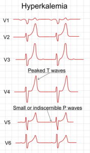 Electrocardiography showing precordial leads in hyperkalemia