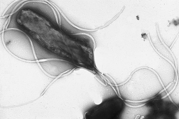 Electron micrograph of H. pylori possessing multiple flagella