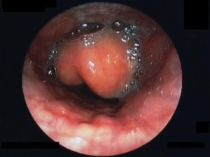 "Image: ""Epiglottitis endoscopy"". License: CC BY-SA 3.0"