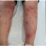Photo of Erythema nodosum
