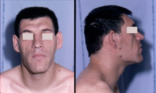 Facial aspect of a patient with acromegaly