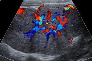 Focal nodular hyperplasia liver