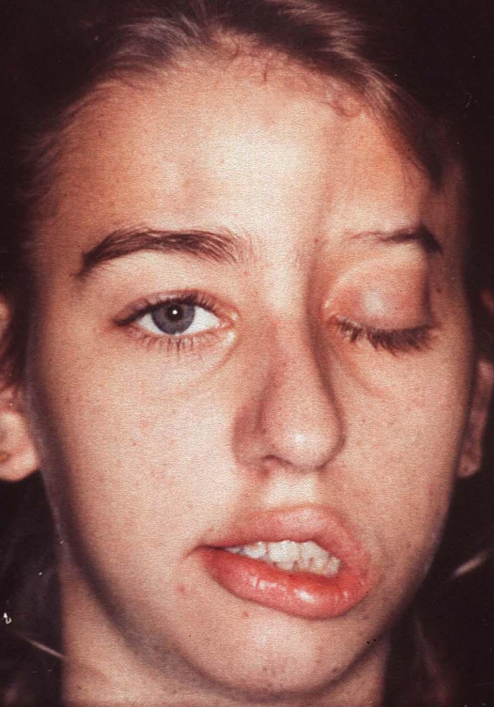 Facial plaque type morphea