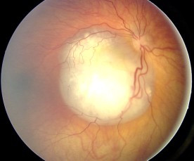 Fundus with retinoblastoma