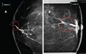 Galactography suggestive of breast papillary lesions
