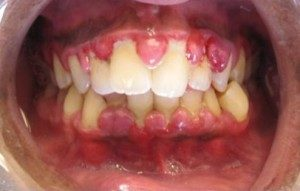 "Image: ""Gingivahyerplasia"" by Lesion. Licence: CC BY-SA 3.0"