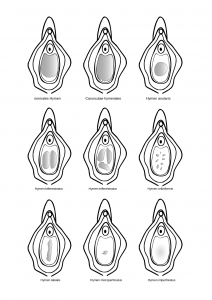 different form of the hymen