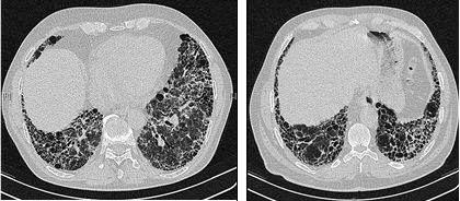 HRCT scans of chest of a patient with IPF