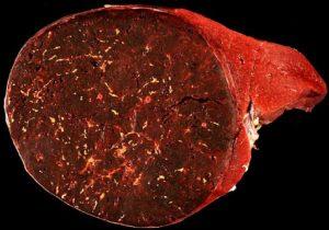 Hamartoma-of-the-spleen