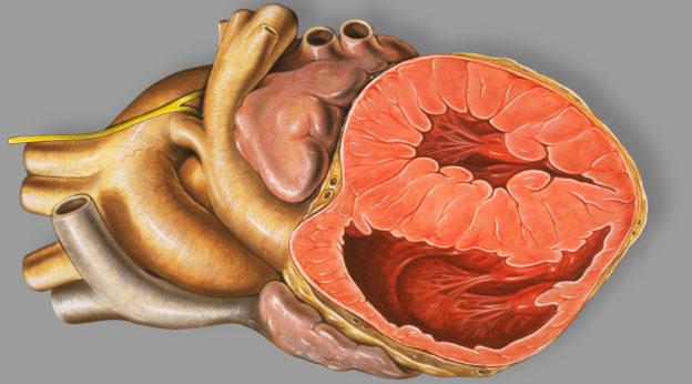 heart patent ductus arteriosus