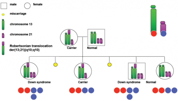 Hereditary Down Syndrome Translocation