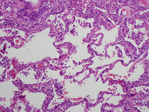 Histology of chronic hypersensitivity pneumonitis
