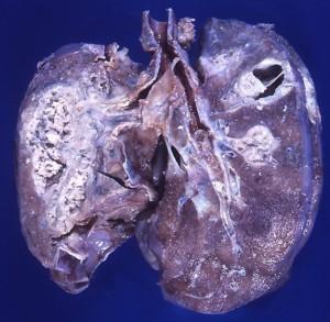 Hodgkin disease