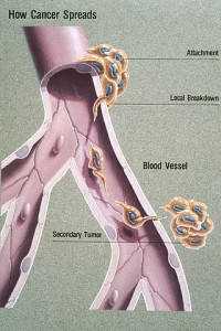 Metastasis Illustration
