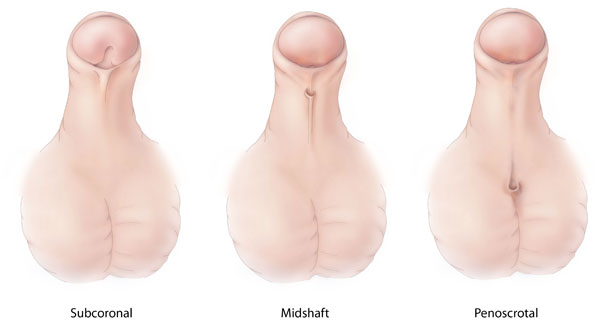 Different types of hypospadias
