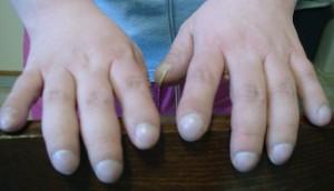 Hypoxia hands