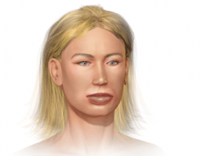 Illustration of Angioedema