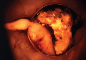 Infiltration of the optic nerve