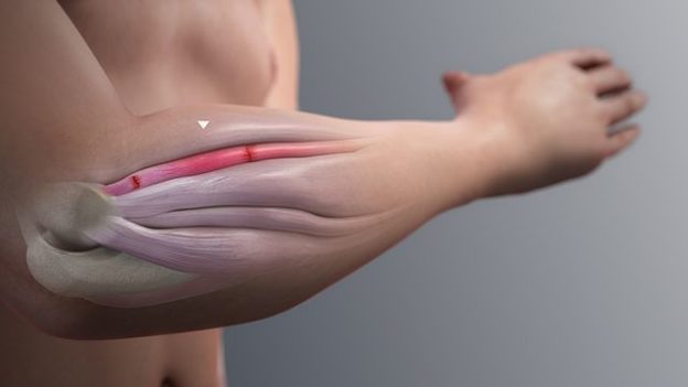 Inflammation forearm extensor muscle