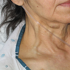 Jugular vein distention