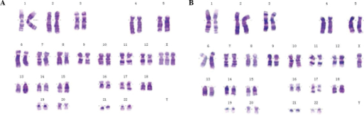 Karyotyping of a whole blood sample from a patient