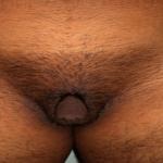 Klitorishypertrophie, männlicher Haartyp