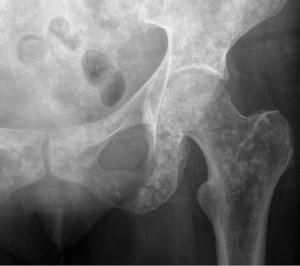 Bone metastases in gastric carcinoma