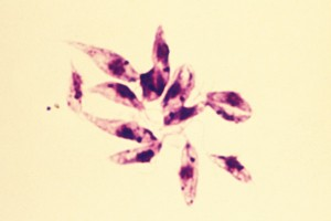 Under the acellular culture condition, the protozoa transforms into the form of promastigote, a flagellated and elongated morphology seen in the mid-gut of the vector.